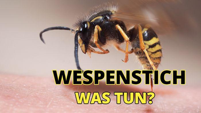 Das kannst Du gegen Schmerzen und Juckreiz bei einem Wespenstich tun