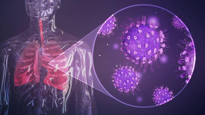 Die Infektion mit dem Coronavirus verläuft in drei Phasen.