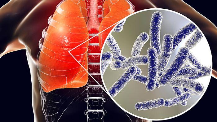 Das Robert Koch- Institut warnt vor einer erhöhten Legionellen-Gefahr in Bädern und Hotels.