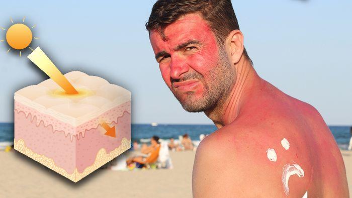 Zu viel UV-Strahlung ist schädlich für unseren Körper.